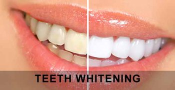 Before and after Teeth Whitening Cosmetic Dentistry.