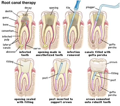 Root Canal Oral Surgery